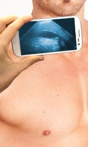 Ultrasound Scanner (Prank)