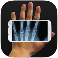 Xray Prank - Play a joke on your friends with this x-ray app
