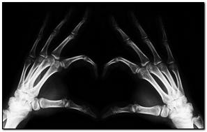 X Ray Heart