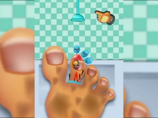 Kids Nail Doctor - Free Kids Game (Gamepay Video) by Arth I-Soft