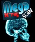 'Mega' X-Ray Scarner